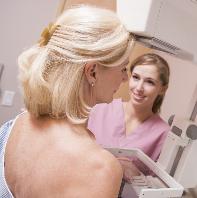 3D Mammography: Q&A with Dr. Lloyd