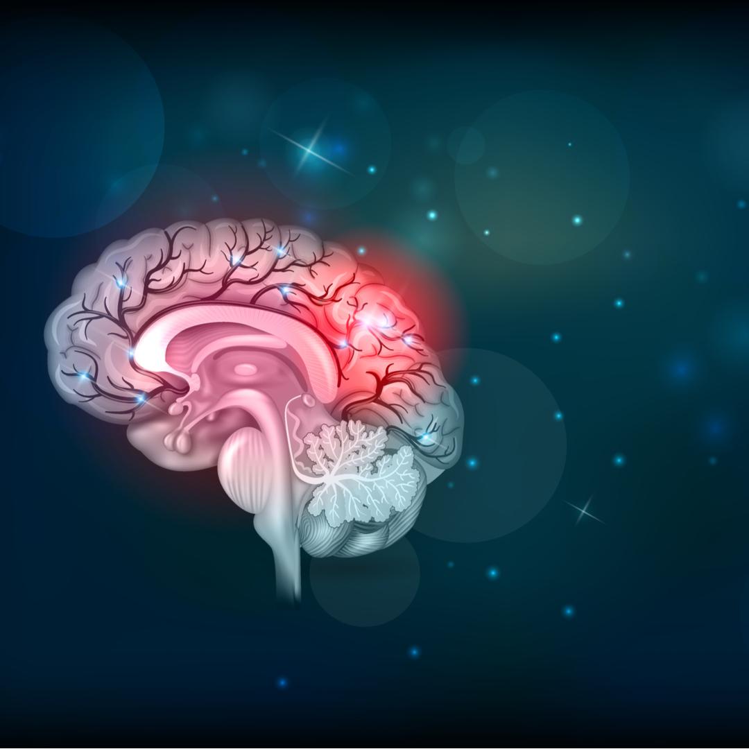 Signs, Symptoms, & Treatment of Stroke